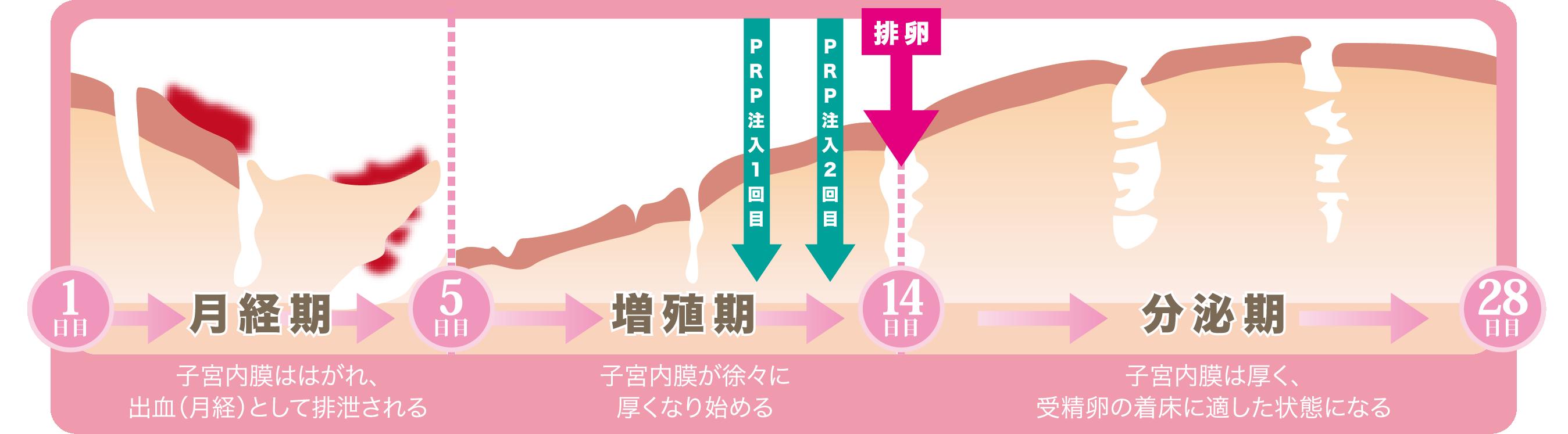 1日目 月経期→5日目 増殖期→14日目 分泌期→28日目